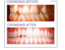 Invisalign | Bayview Family Dental | Dr Erwin Chan | 905 ...