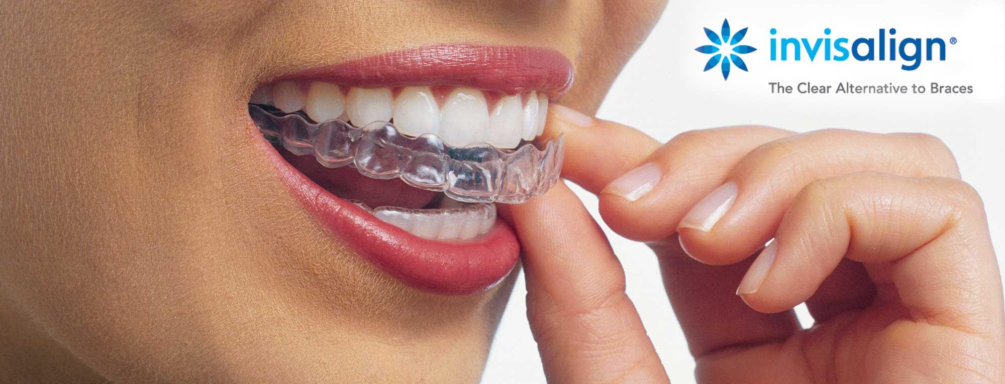Invisalign Aurora Dentist