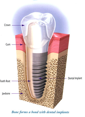 Dental Implant Aurora Dentist